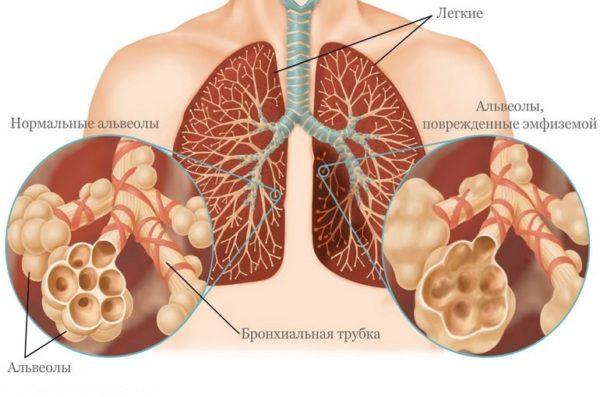 Эмфизема легких